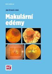 Makulární edémy - Jan Ernest a kolektív
