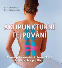 Akupunkturní tejpování - Účinné při akutních i chronických bolestech a potížích - Kay, H. U. Hecker, Liebchen