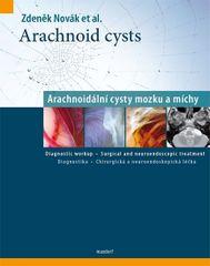 Arachnoid cysts - Arachnoidální cysty mozku a míchy - Zdeněk Novák
