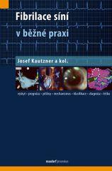 Fibrilace síní v běžné praxi - Josef Kautzner a kolektiv